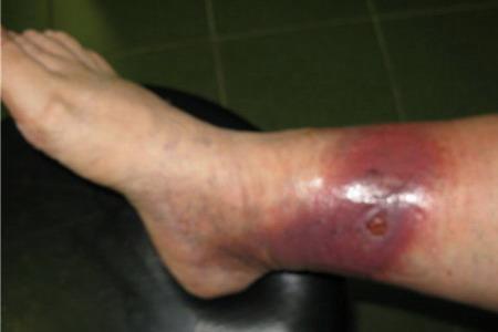 Болячки на руках и ногах