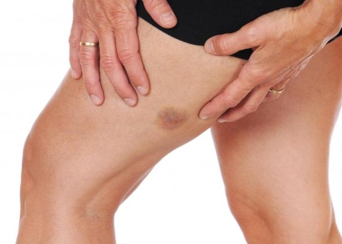 Болит нога после удаления вены