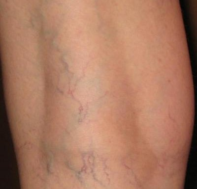 сосудистые звёздочки фото на ногах