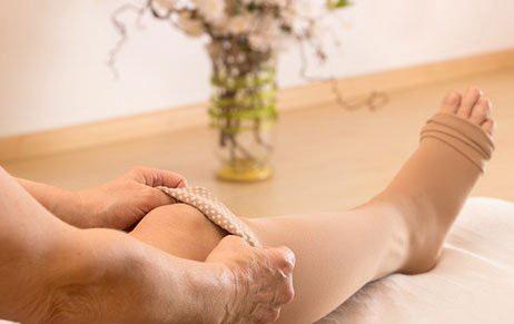 Варикоз после беременности на ногах что делать