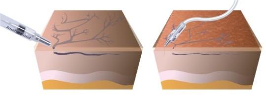 Прессотерапия при варикозе отзывы